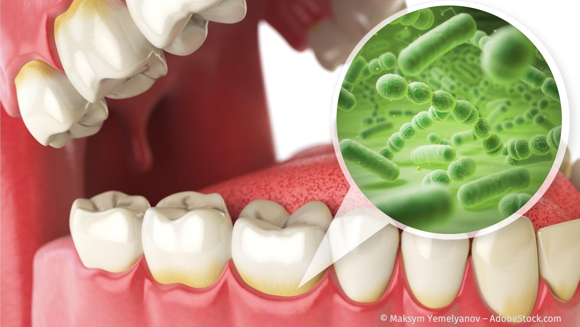 Parodontitis-Ursachen