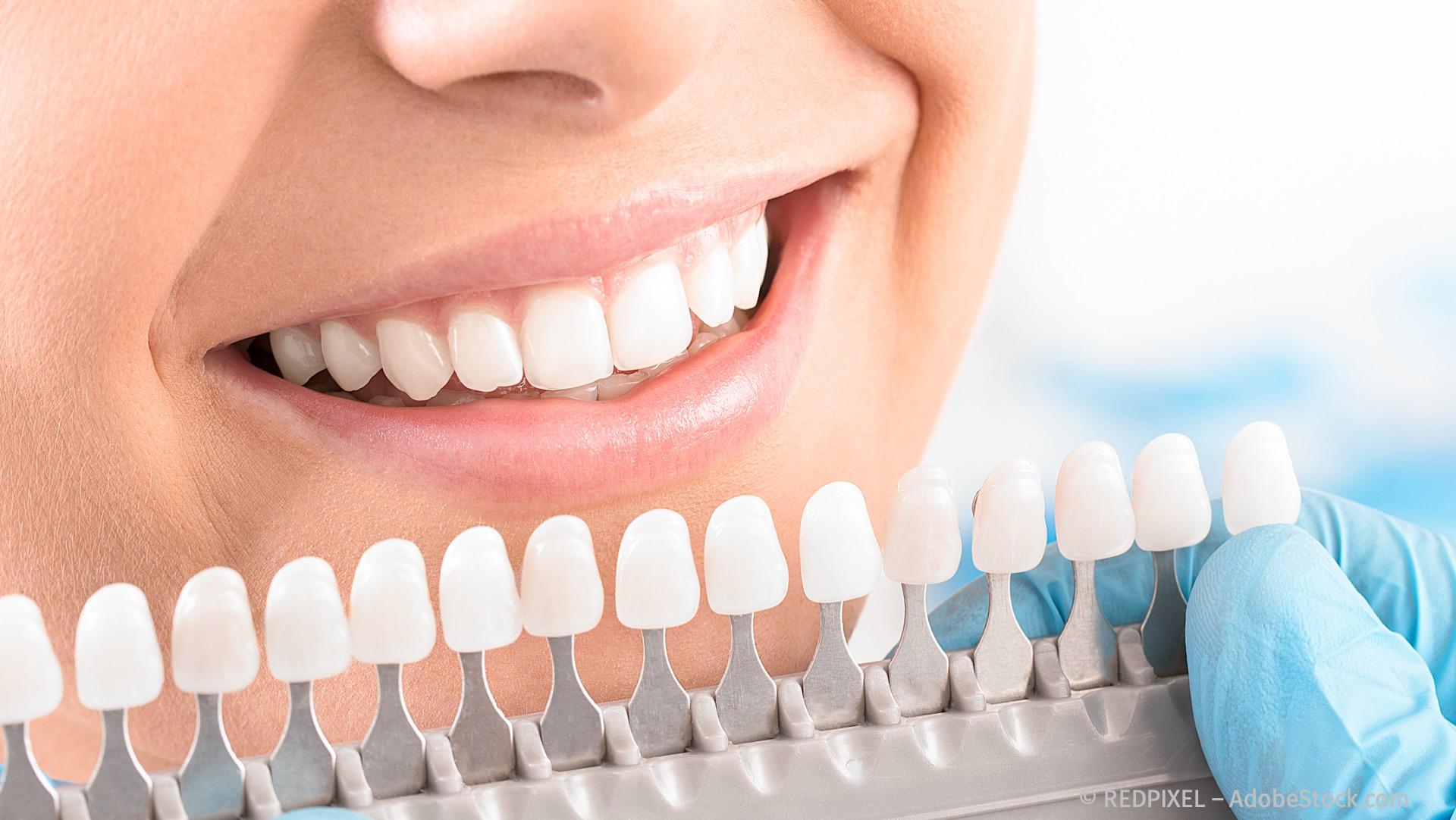 Bleaching: weiße Zähne mit Zahnaufhellung