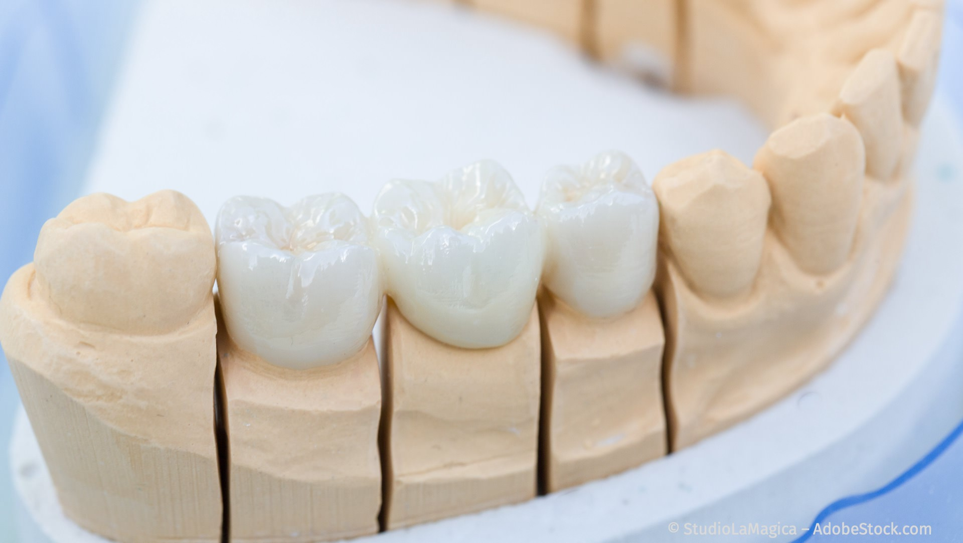 Zahnersatz: Zahnkronen und Zahnbrücken aus reiner Keramik