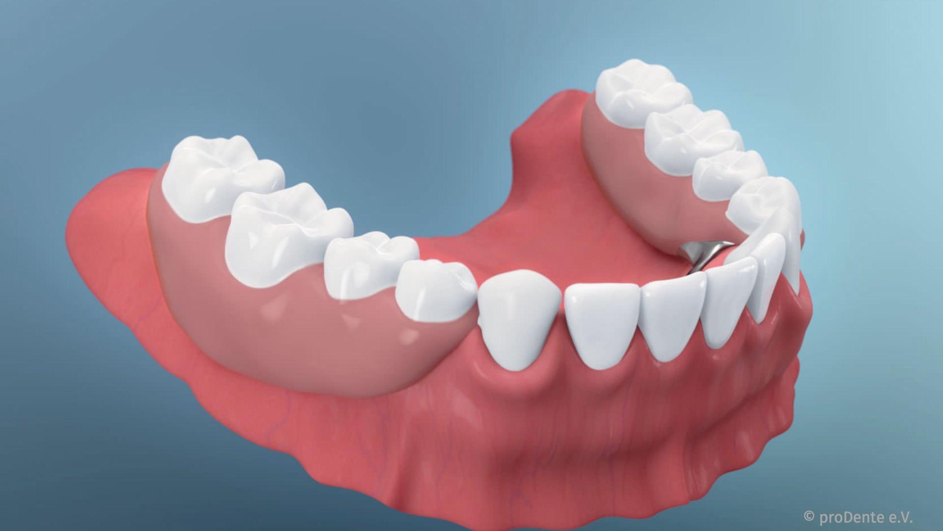 Herausnehmbarer Zahnersatz: Teilprothesen und Vollprothesen